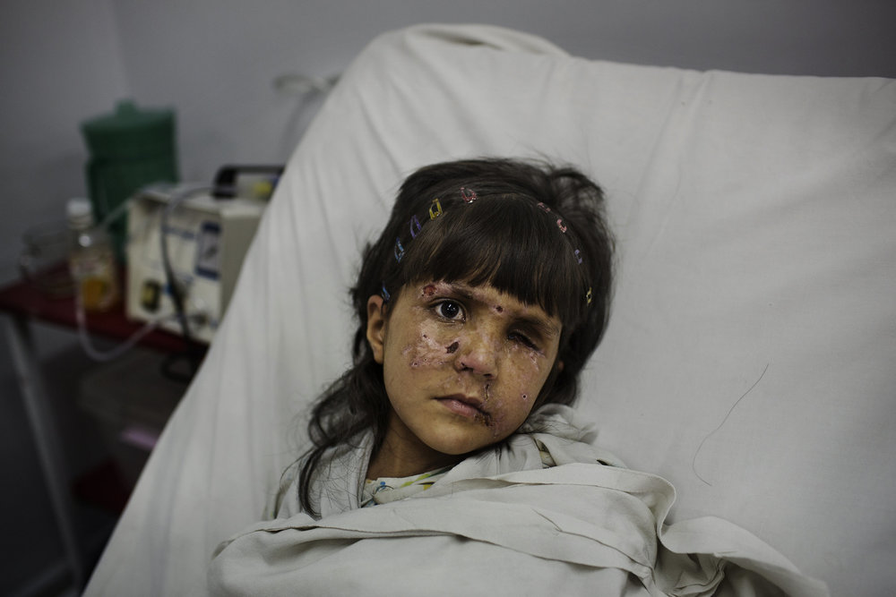 Maneza, 5, from Gardez, recovers from a mine explosion that cost her hand and right eye.