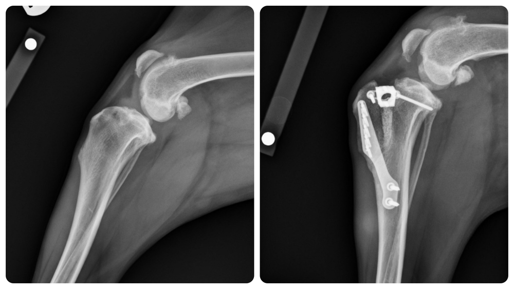Pre and Post-Op TTA Radiograph