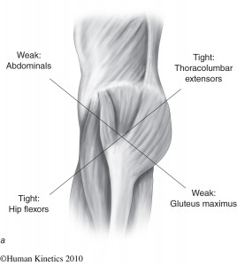 The typical pattern in a so called lower crossed syndrome.