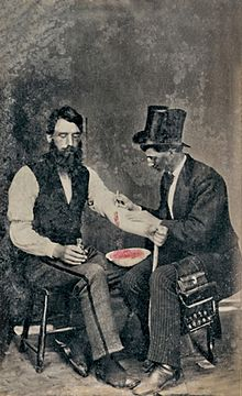 Bloodletting in 1860, one of only three known photographs of this procedure @ The Burns Archive