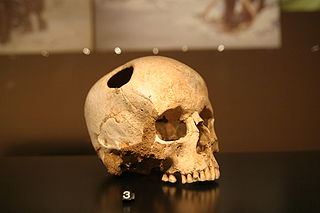 Girl skull, trepanated with a silex; neolithic (3500 BC) ; patient survived. Natural History Museum, Lausanne. By Rama (Self-photographed) [CC BY-SA 2.0], via Wikimedia Commons.