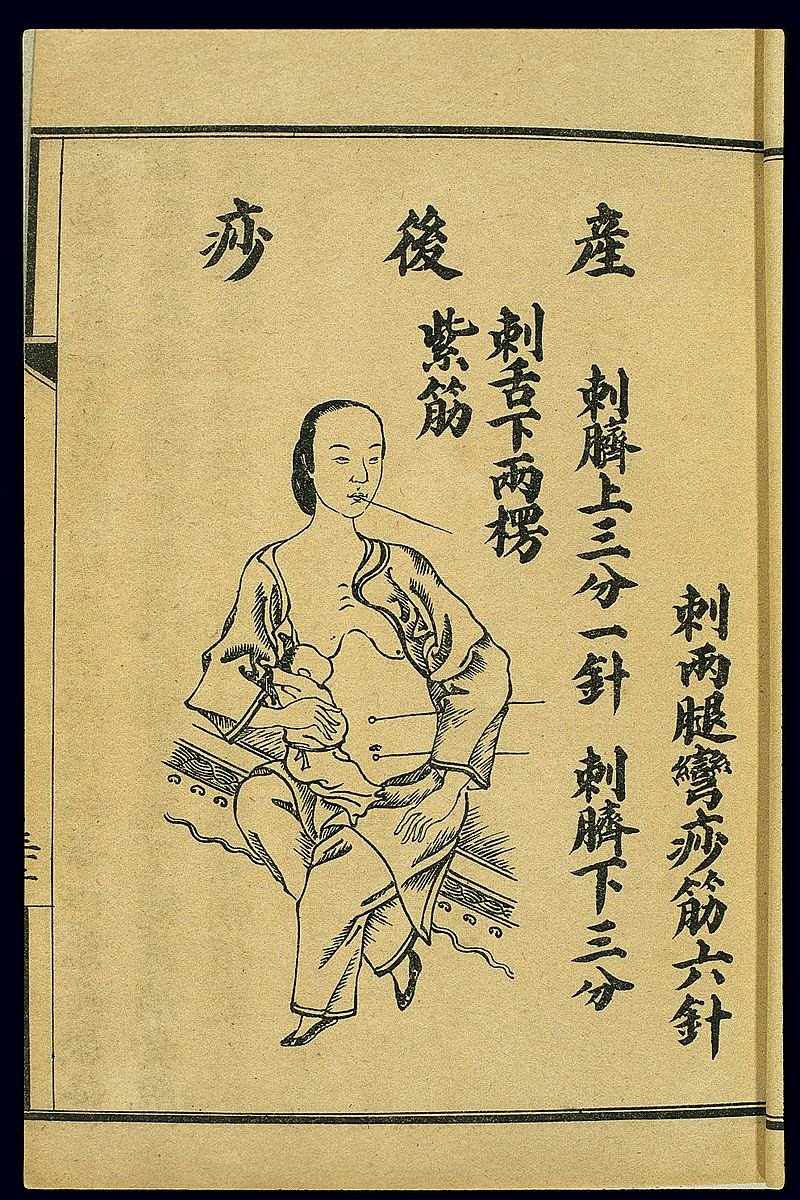 Chinese lithograph Huitu Shajing Hebi,  Specialised text representing acupuncture points  to cure postpartum illness.  1644-1911 CE.