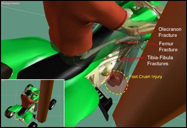 Reconstruction of the Injury Producing Event of an ATV Accident.