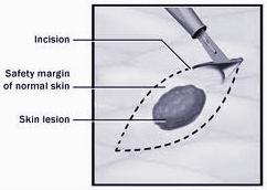 skin-biopsy.jpg