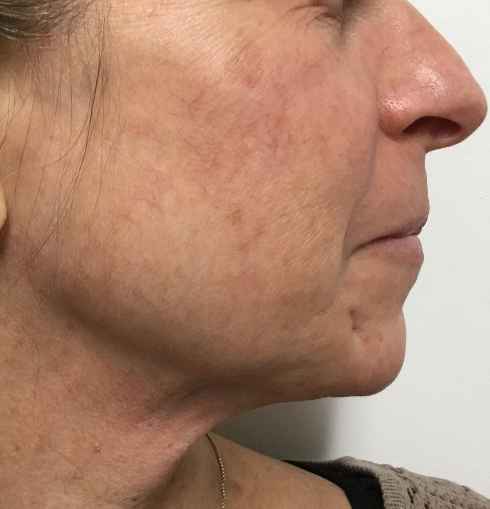 After: 1 VBeam treatment (normally needs 2-3 treatments)