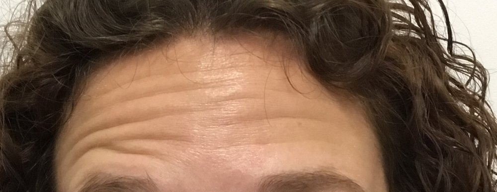 Before: Frontalis (forehead muscle) movement