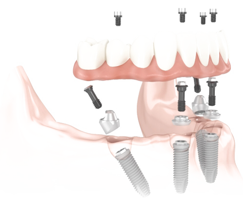 The LOCATOR implant attachment has been setting the standard for the implant retained overdenture for many years. It's pivoting technology makes it the premier system for implant overdentures. This implant system is simple, cost effective, and secures the bottom denture.