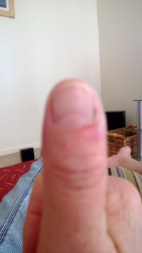 Infected thumb