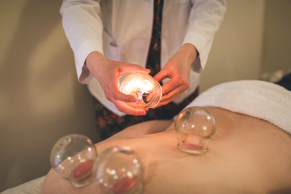 Twelve_Rivers_Acupuncture_Cupping_Therapy_credit_CBartow