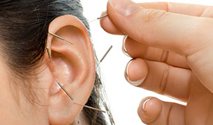 Auriculotherapy Using Ear Needles