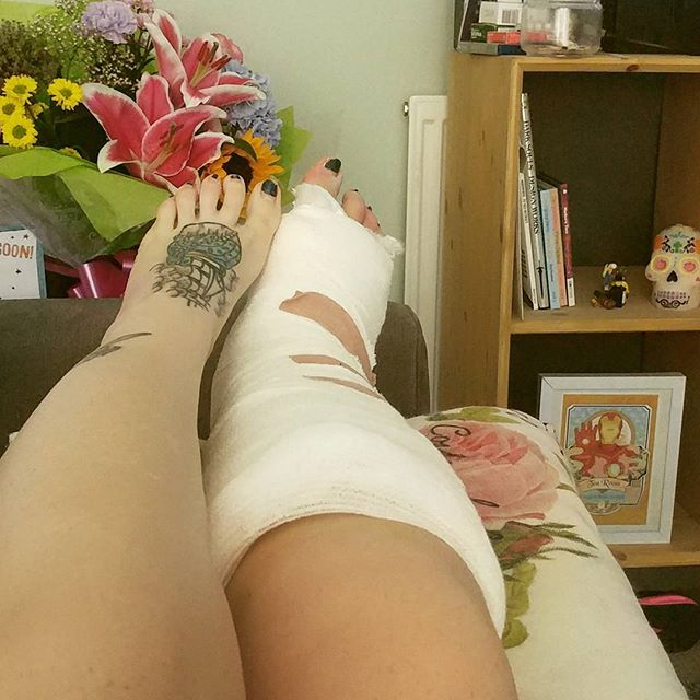 At least one of my legs is going to look constantly slim and tan next to a cast. #brokenankle #recovery #getwellsoon #flowers #sugarskull #tattoos #girlswithink