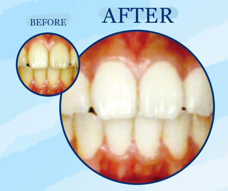 TeethWhiting_Website.jpg