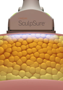 SculpSure_Static_Images_01_02_device-1-210x300.jpg