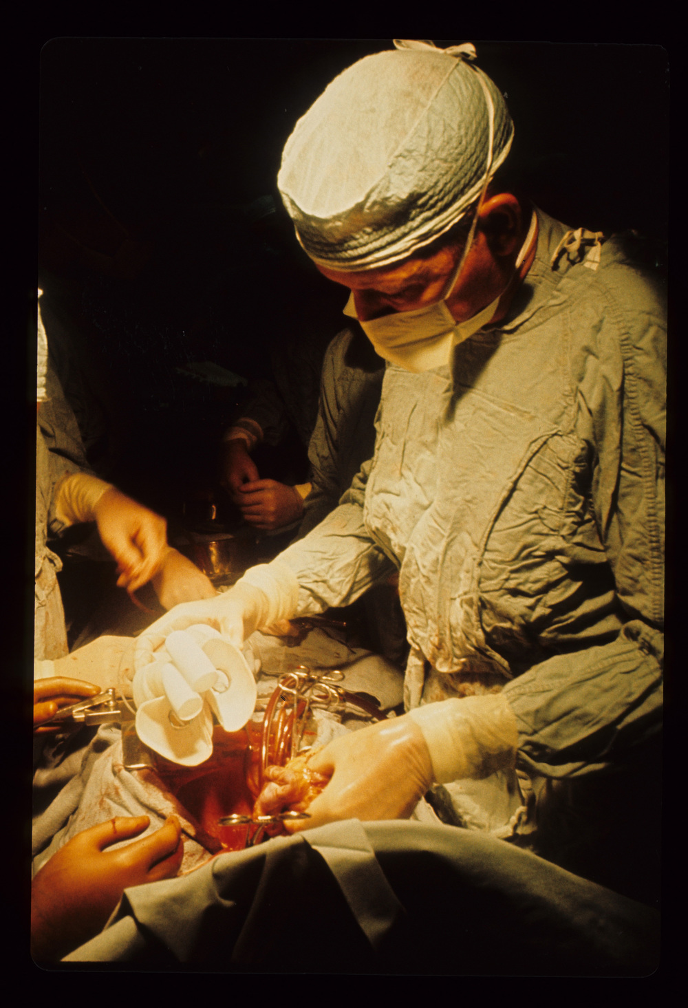 Dr. Cooley implanting the first total artificial heart in a human on April 4, 1969. He's holding Haskell Karp's diseased heart in his left hand and the total artificial heart in his right hand.