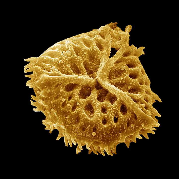 Spore - Anthoceros