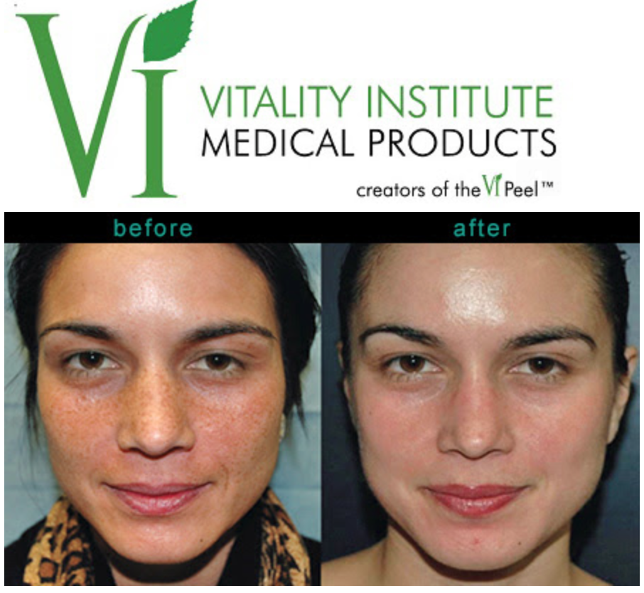 VI Peel Chemical Peel Training Course