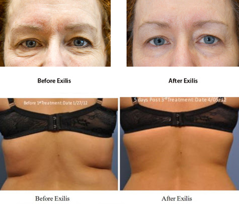 Exilis Elite Certification Course