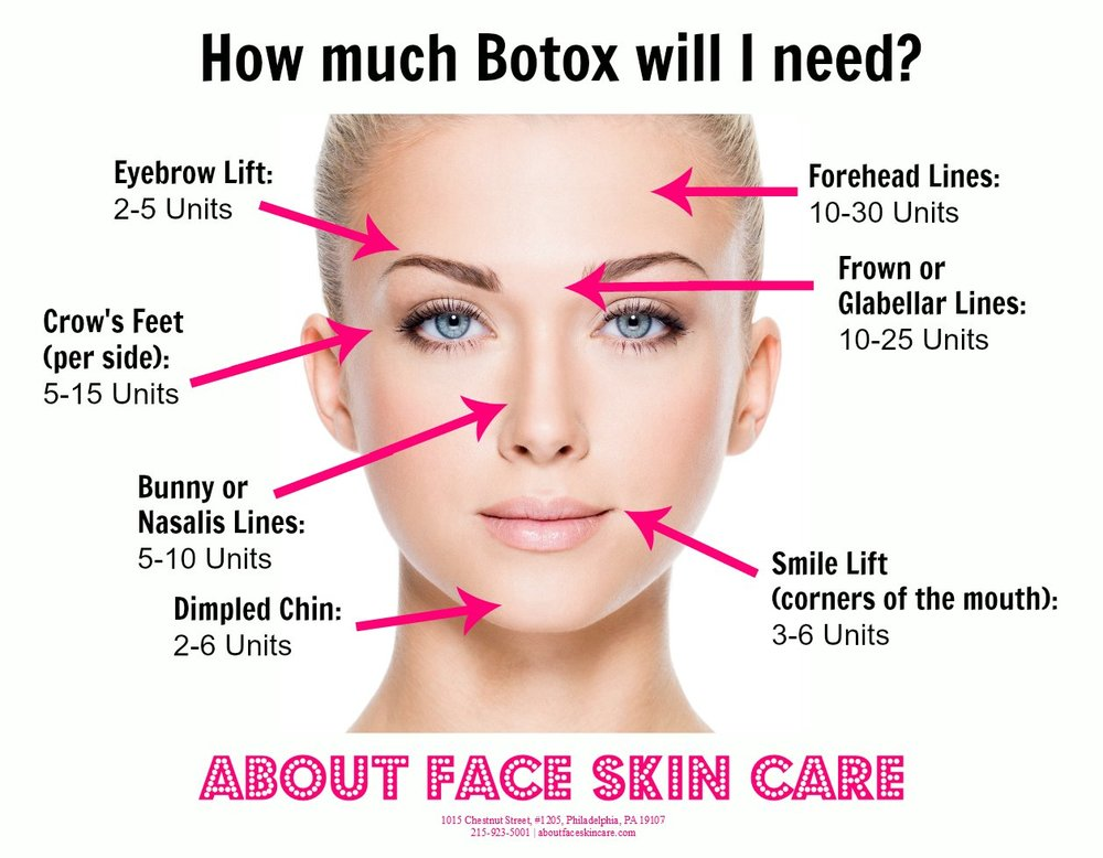 "Check out this great guideline from ""About Face Skin Care"" to see how many units of BOTOX you should consult your injector for! Note: This guideline has recommendations for each area, your injector may add or subtract units depending on musculature."