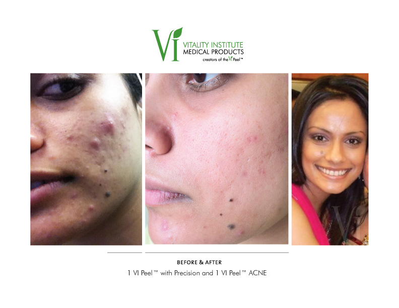 VI Peel with Precision and ACNE