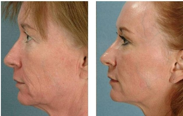 Rejuvapen Micro Needling - Collagen Induction Therapy Results Example