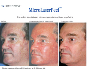 Sciton MicroLaserPeel Results Example