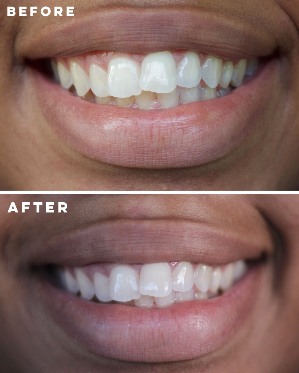 dreaspeaks teeth whitening
