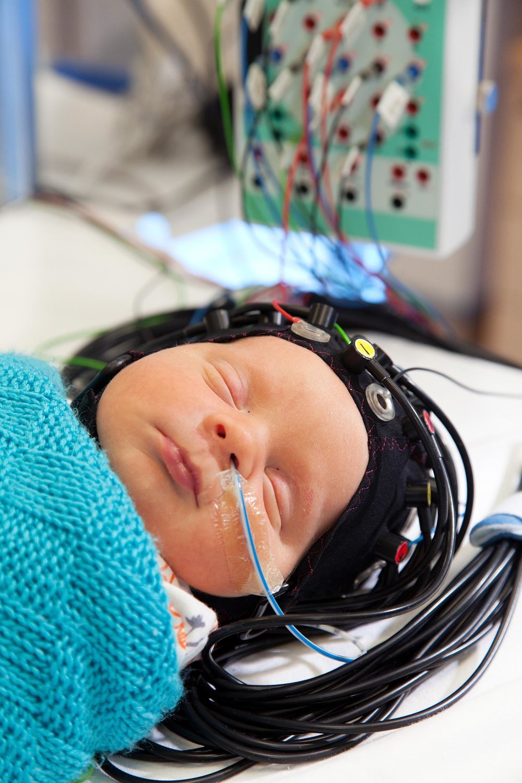 Neonatal fNIRS Imaging