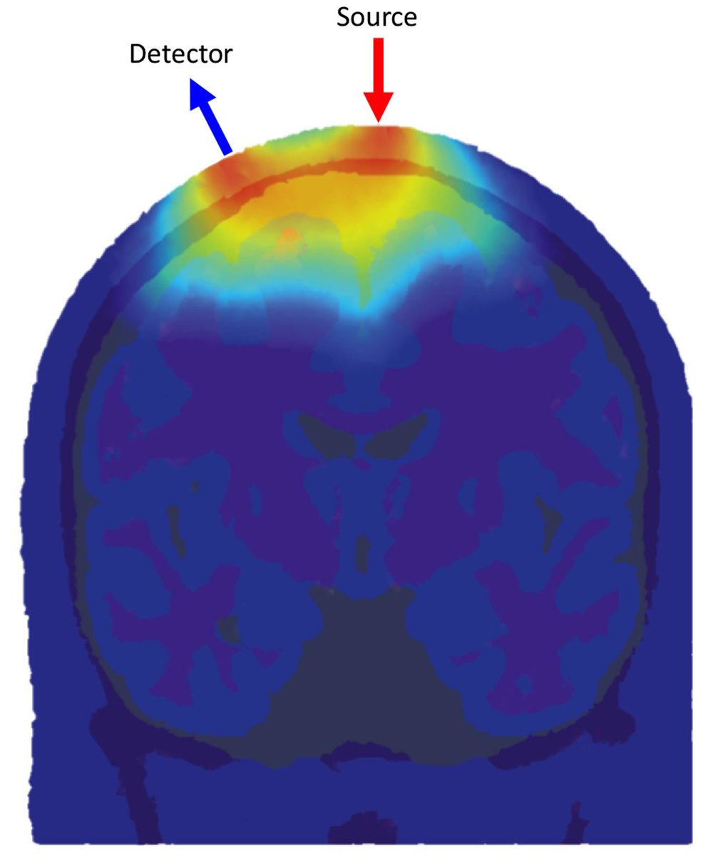 The distribution of detected photon flight paths through an anatomical head model for one source and one detector location. The greater the density of photon paths, the greater the sensitivity of the fNIRS channel to that location.