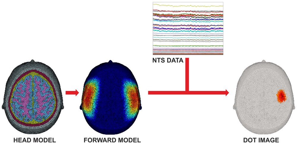 An overview of the DOT image reconstruction process. An anatomical head model is used to determine where the detected near-infrared light has travelled, and construct what is known as a forward model. By combining this with the measured data from the NTS Optical Imaging System, it is possible to create 3D images of brain function. (Click to enlarge)