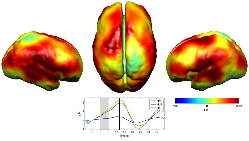 Abnormal Infant Brain Activity Detected With Gowerlabs NTS