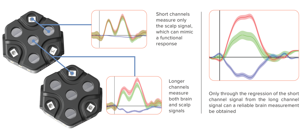 - High-density sampling has been extensively demonstrated to provide more reliable measurements of brain function than traditional fNIRS approaches. Systems that only measure at one distance (e.g. 30 mm) are highly susceptible to signal contamination arising from the scalp.LUMO provides multiple short-separation channels for every source and detector, which allows the scalp signal to be detected, isolated and removed. Only with high-density sampling can users be confident that the signal they record is truly from the brain.