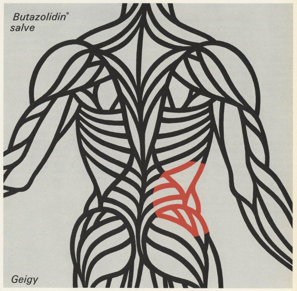 Détail de la campagne pour Butazolidin, au autre anti-inflammatoire non stéroïdien. La zone douloureuse est clairement marquée avec la couleur rouge, couleur de l'inflammation par excellence.