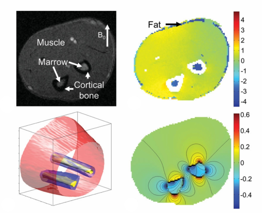 In vivo MRI, field shifts, model, and unit response