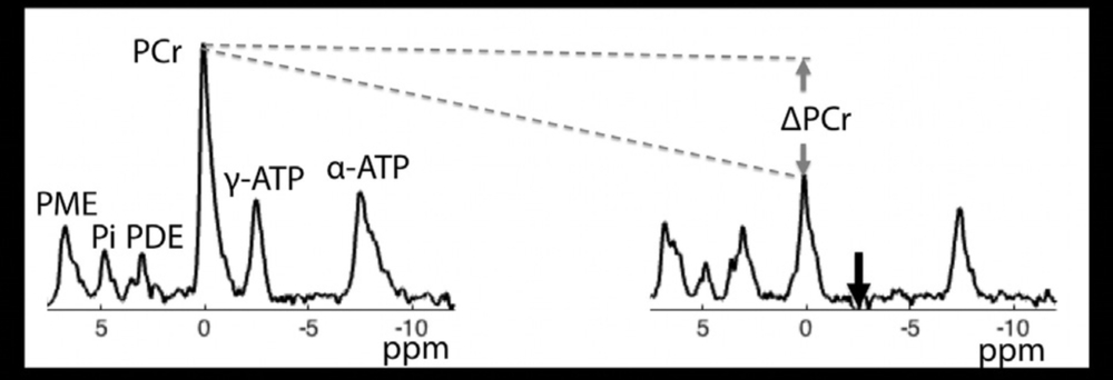 Phosphorus spectra in the absence and presence of γ-ATP saturation