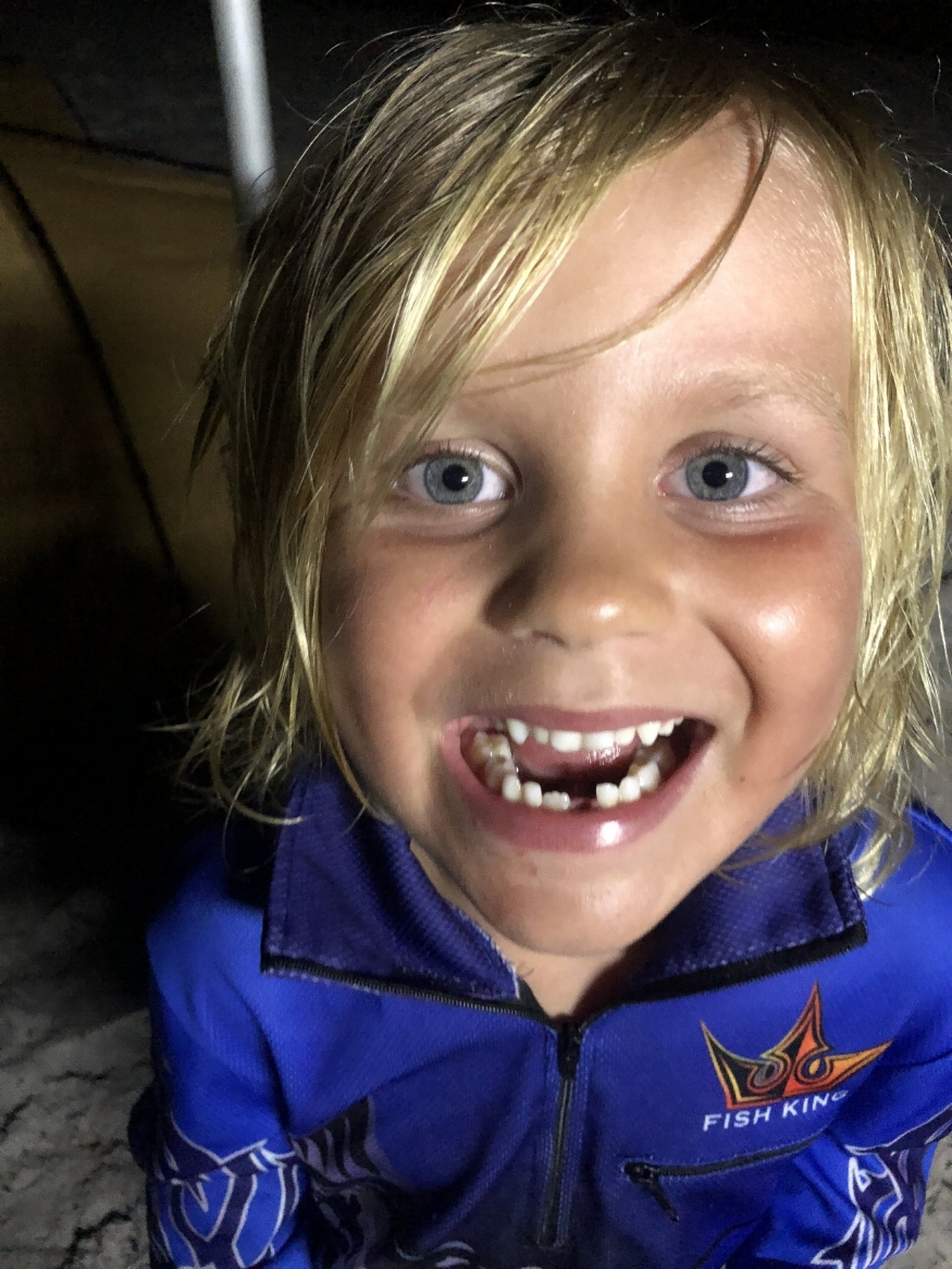 Jack lost his second tooth at Wathumba.