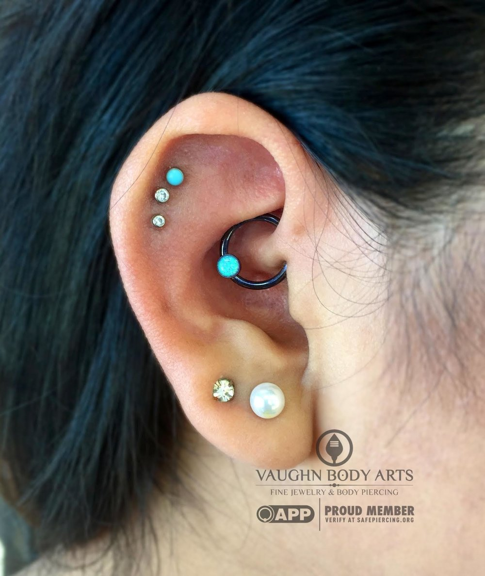 "Daith piercing with niobium jewelry from Anatometal, anodized ""dark blue""."