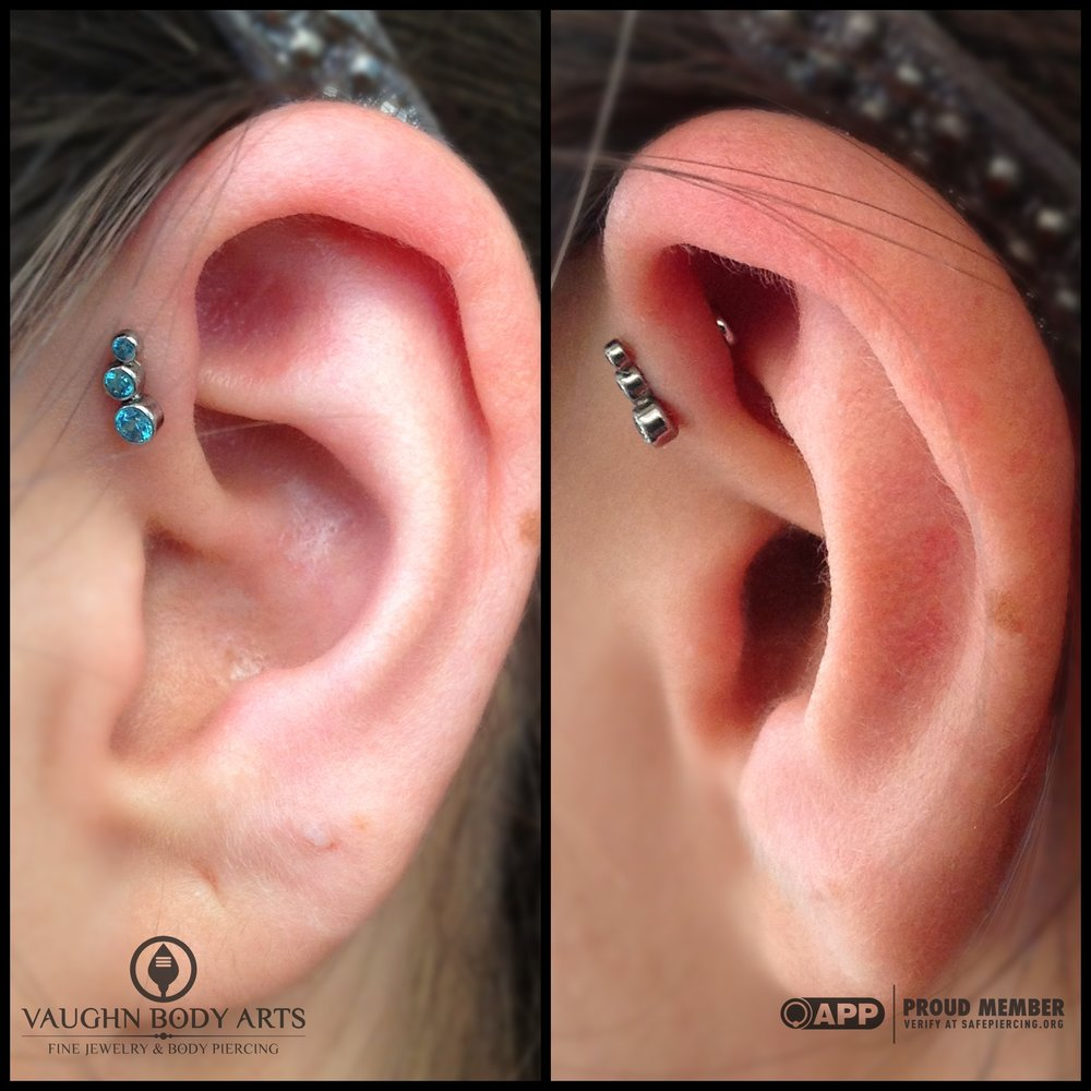 Forward helix piercing with titanium jewelry from Anatometal.