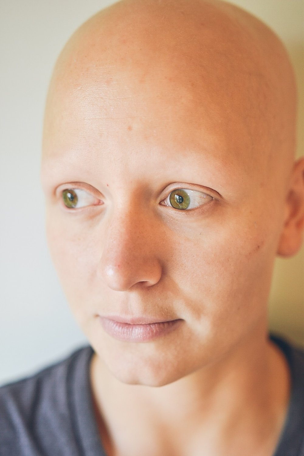 Michelle was diagnosed with alopecia at the age of 18, as she started losing hair very rapidly.