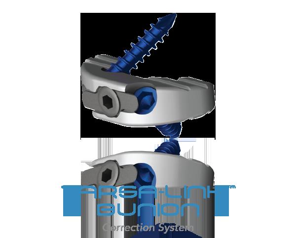 Tarsalink-BUNION-NEWS.png