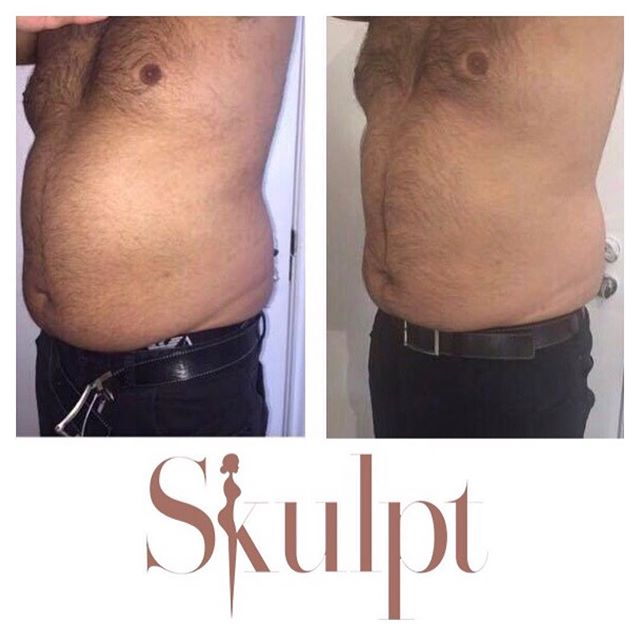 Before and after fat freezing followed by 8 sessions of enCurve.  All fat freezing treatments booked in June will receive a free Opera LED Facial Mask treatment! For bookings please call: 01565 745680, or visit www.weareskulpt.co.uk #WeAreSkulpt #Skulpt #SkulptClinic #Aesthetics #NonSurgical #Beauty #FatLoss #FatFreezing #InchLoss #FatFreeze #CLATUU #Crystallisation #SkulptMe #enCurve