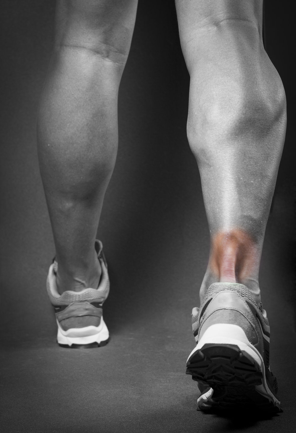 haag-foot-ankle-achilles-tendonitis