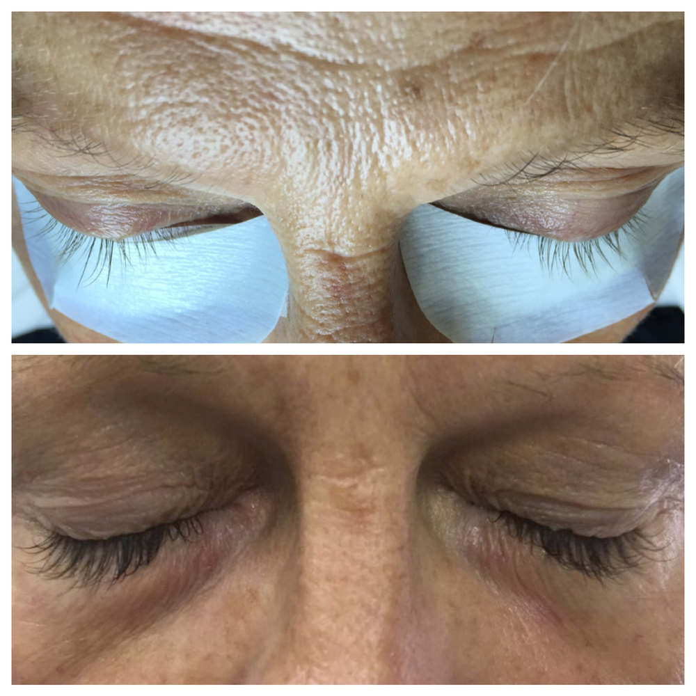 Swoon Aesthetic Spa - Before and After Eyelash 2