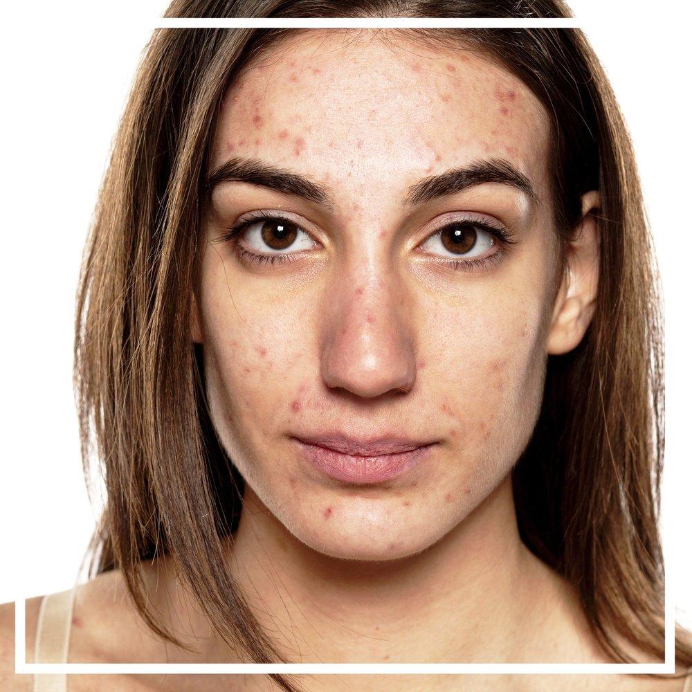 acne service menu.jpg