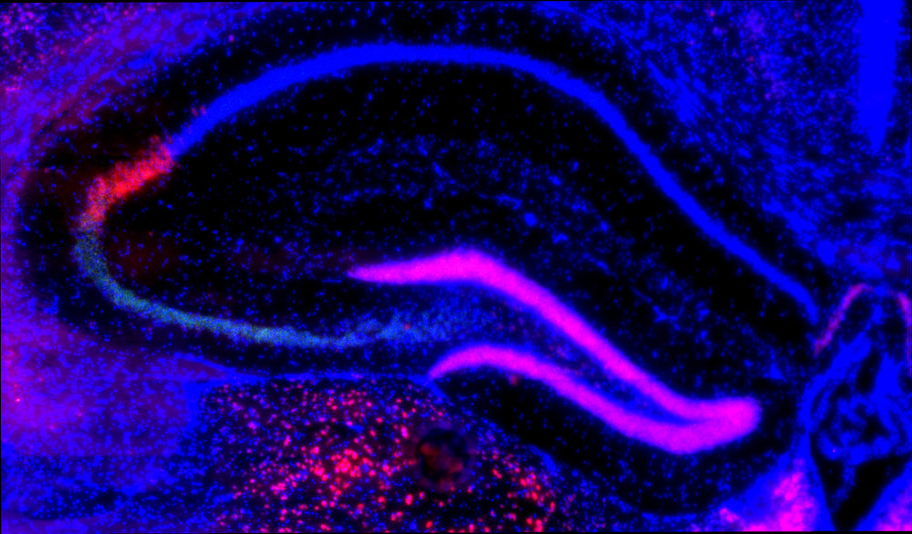 In situ hybridisation for Pcp4 mRNA transcripts in the hippocampus (shown in pink). Note the high expression in area CA2 and in the dentate gyrus.