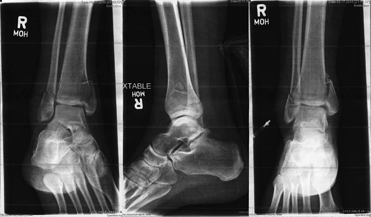 Ankle X-Rays 5-2016