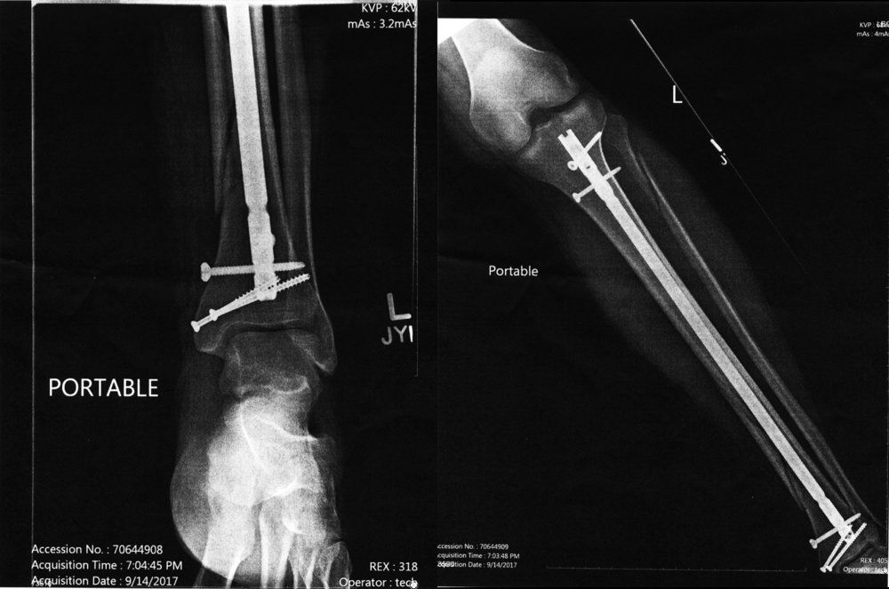 Left leg, post-op, September 2017.