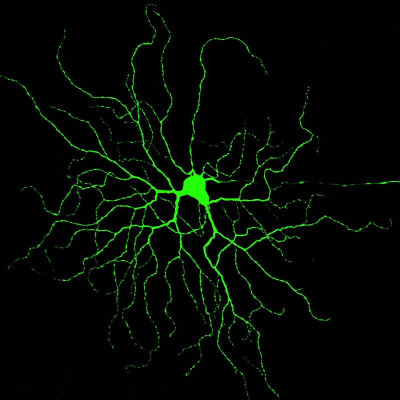 Retinal ganglion cell labeled with a fluorescent dye during electrophysiological recording.