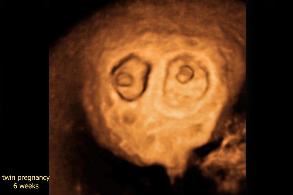 Προγεννητικός έλεγχος για σύνδρομο Dawn στην 11τη-13τη εβδομάδα εγκυμοσύνης  ( αυχενική διαφάνεια 662304987a8