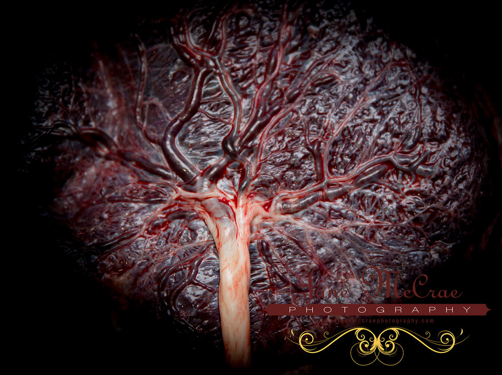 This is not my placenta. Jane McCrae Photography, based near Sydney, Australia, has the most heartfelt birth photos I have ever seen.  www.janemccraephotography.com