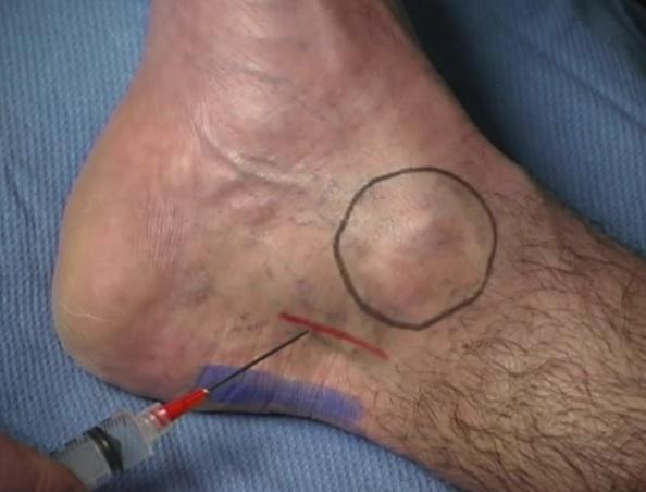 Blue = achilles tendon; black = medial malleolus; red = Posterior tibial nerve